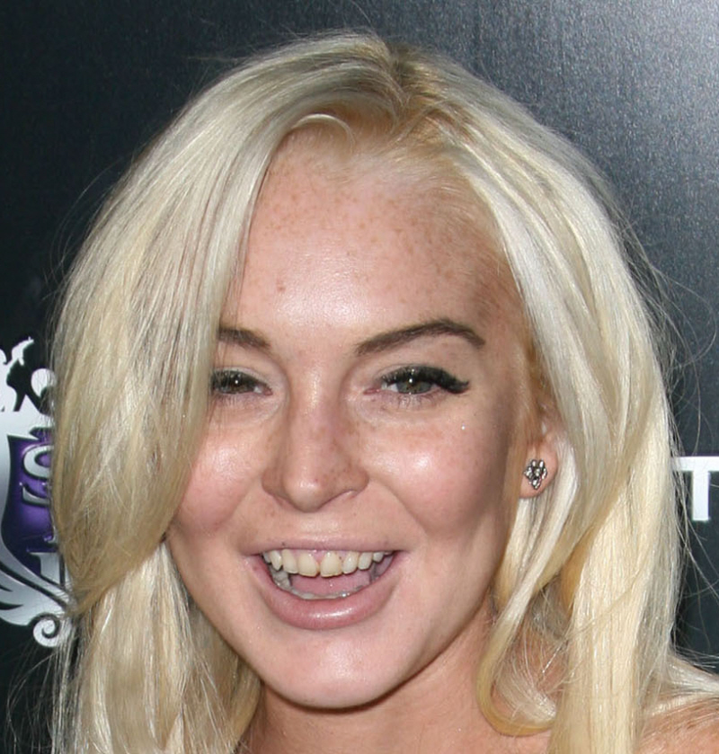 Lindsay Lohan showing reasons why you shouldn't do drugs, your teeth